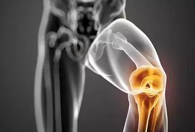 骨性关节炎的康复治疗